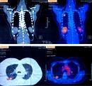 Điều trị đích bệnh nhân ung thư phổi không tế bào nhỏ tại Trung tâm Y học hạt nhân và Ung bướu - Bệnh viện Bạch Mai