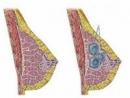 Bướu sợi tuyến tái diễn có nguy hiểm không?