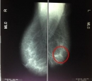 Sàng lọc phát hiện sớm bệnh ung thư vú tại Trung tâm Y học hạt nhân và Ung bướu bệnh viện Bạch Mai