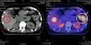 Điều trị ung thư đại tràng di căn gan, giai đoạn muộn bằng hóa trị kết hợp với kháng thể đơn dòng và nút mạch