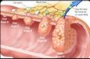 Phòng ngừa ung thư dạ dày, phải diệt vi khuẩn HP