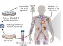 Dấu ấn trên tế bào lympho T giúp dự đoán đáp ứng điều trị bệnh nhân ung thư bạch cầu mạn bằng công nghệ tế bào CAR-T