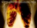 Giá trị của PET/CT trong chẩn đoán ung thư phổi không tế bào nhỏ (phần III)