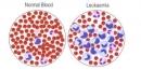 Thành công phi thường với phương pháp điều trị ung thư bằng tế bào miễn dịch