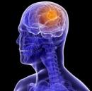 Sự thật chưa biết về ung thư não