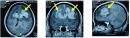 U lympho không Hodgkin biểu hiện tại não (Central Nervous system Lymphoma)