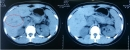 Nhân một trường hợp U đặc giả nhú của tụy được chẩn đoán và điều trị tại bệnh viện Bạch Mai