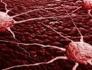 Phát hiện loại enzim chặn di căn của tế bào ung thư