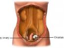 Triển vọng thuốc mới trị ung thư buồng trứng