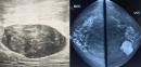 U xơ tuyến vú có nguy hiểm không? Khi nào nên phẫu thuật?