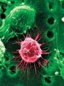 Kết quả điều trị u tế bào mầm hệ thần kinh trung ương bằng phương pháp xạ trị gia tốc