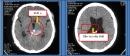 Kết quả sau 10 năm điều trị u màng não thất bằng dao gamma quay tại Trung tâm Y học hạt nhân và Ung bướu, Bệnh viện Bạch Mai