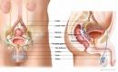 Xạ trị tăng sự sống cho bệnh nhân ung thư tuyến tiền liệt