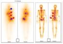 Vai trò của xạ hình toàn thân trong chẩn đoán, đánh giá, theo dõi điều trị ung thư tuyến giáp thể biệt hóa
