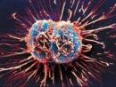 Singapore khám phá ra cách diệt tế bào ung thư mới