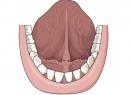 Nguyên nhân ung thư lưỡi