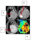 Vai trò của chẩn đoán hình ảnh trong chẩn đoán u màng não thất
