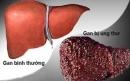 """Ung thư gan, cái kết đau đớn của những """"sâu rượu"""""""