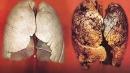 Liệu pháp điều trị mới cho ung thư phổi không tế bào nhỏ