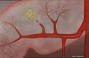 Xạ trị trong chọn lọc điều trị ung thư gan bằng Hạt vi cầu phóng xạ Y-90