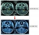 Điều trị thành công u não ác tính (U sao bào độ 3: Anaplastic Astrocytoma Grade 3) ở trẻ em