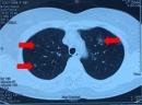 Điều trị thành công bệnh nhân ung thư phổi loại biểu mô tuyến di căn phổi tại bệnh viện Bạch Mai