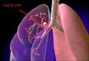 Ung thư phổi dương tính với ALK là gì?