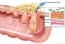 Phát hiện mới: thiếu canxi dễ mắc ung thư đại tràng