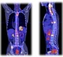 Điều trị thành công bệnh nhân ung thư tại hai vị trí: hạ họng và thực quản tại Trung tâm Y học hạt nhân và Ung bướu - Bệnh viện Bạch Mai