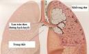 Những điều cần biết về bệnh ung thư phổi