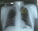 Ung thư phổi trên phim Xquang