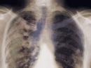 Điều trị ung thư phổi tại nhà