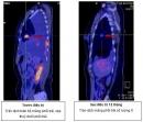 Điều trị ung thư phổi không tế bào nhỏ bằng hoá chất kết hợp với thuốc điều trị đích tại Trung tâm Y học hạt nhân và ung bướu, Bệnh viện Bạch Mai