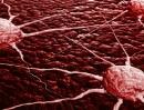 Cuối cùng, chúng ta đã tìm ra cách ngăn tế bào ung thư di căn