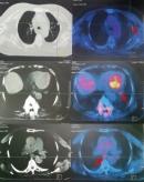 Ca lâm sàng ung thư phổi di căn xương điều trị bằng thuốc điều trị đích ở bệnh nhân cao tuổi