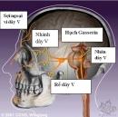 Kết quả bước đầu điều trị đau dây thần kinh số V bằng dao gamma quay